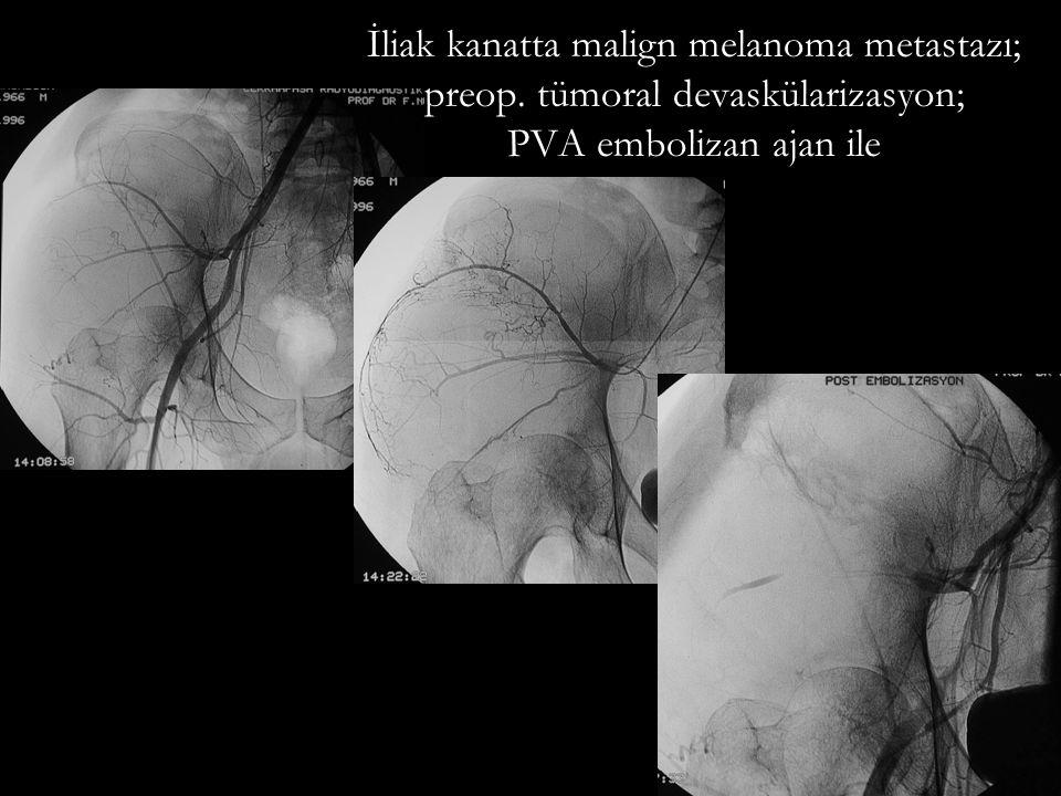 İliak kanatta malign melanoma metastazı; preop