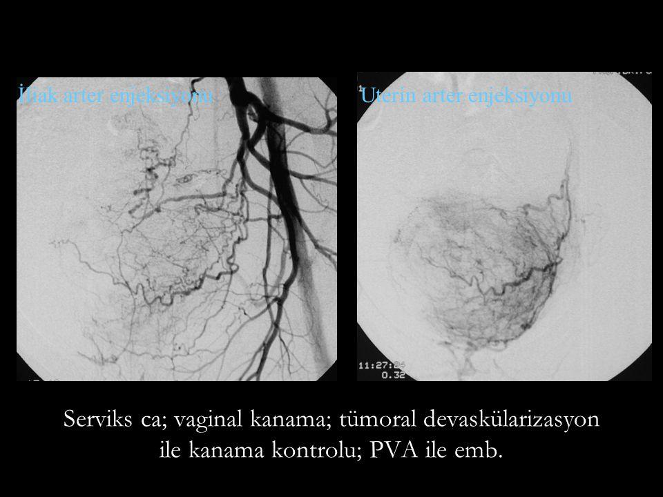 İliak arter enjeksiyonu