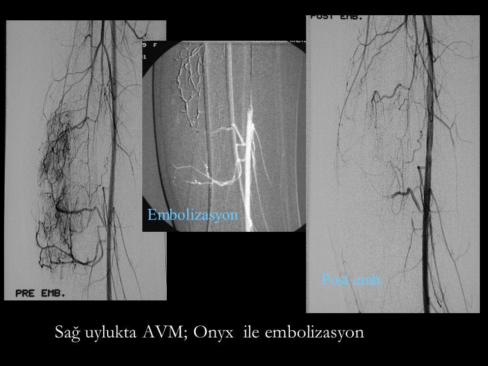 Sağ uylukta AVM; Onyx ile embolizasyon