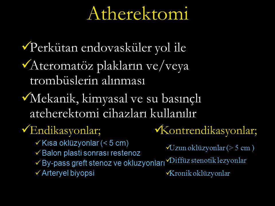 Atherektomi Perkütan endovasküler yol ile