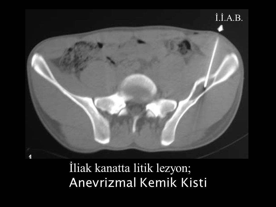 İliak kanatta litik lezyon; Anevrizmal Kemik Kisti