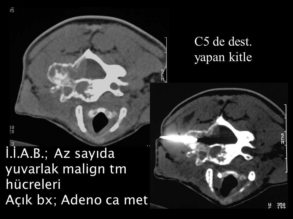 C5 de dest. yapan kitle İ.İ.A.B.; Az sayıda yuvarlak malign tm hücreleri Açık bx; Adeno ca met