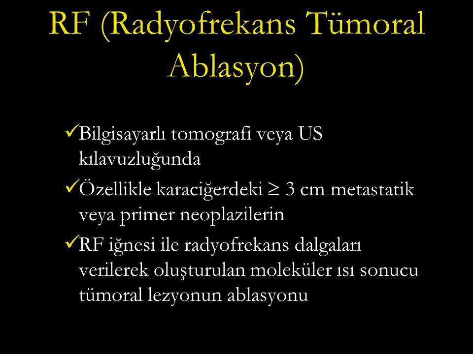 RF (Radyofrekans Tümoral Ablasyon)