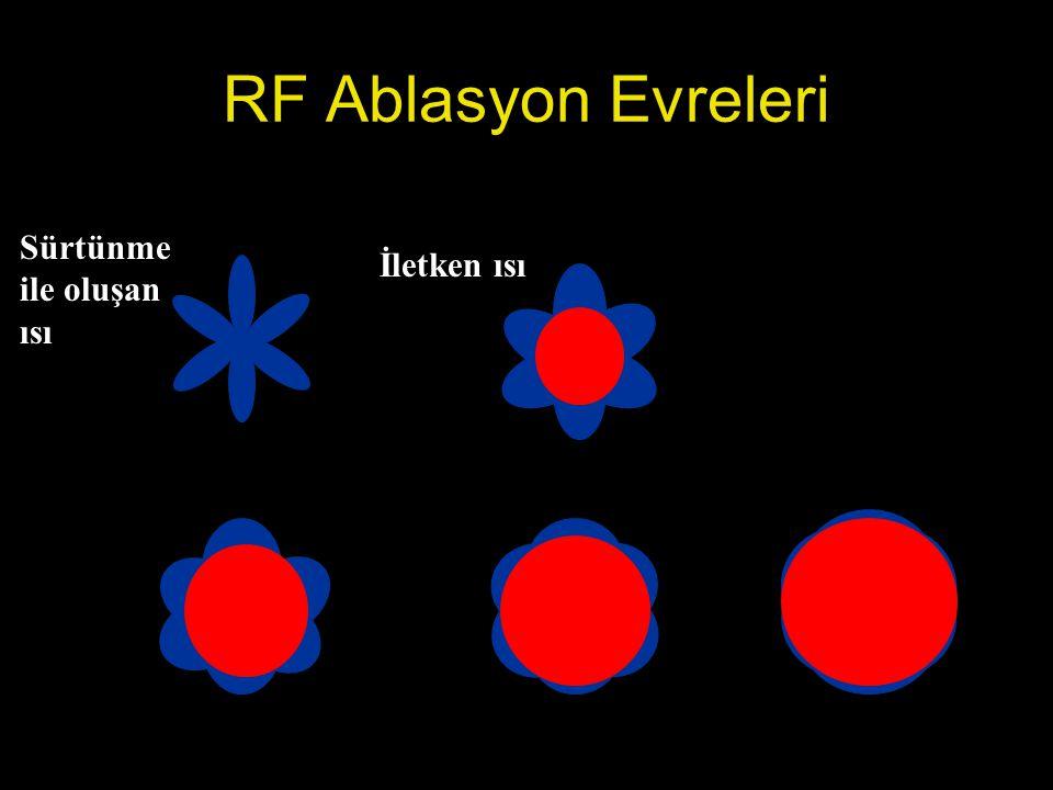 RF Ablasyon Evreleri Sürtünme ile oluşan ısı İletken ısı