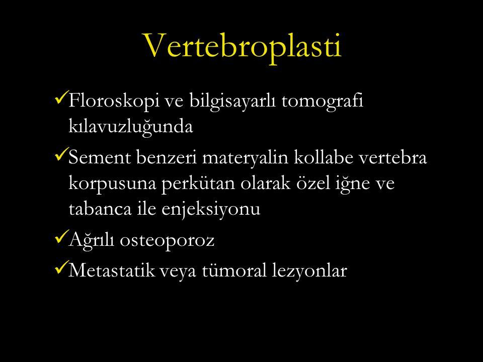 Vertebroplasti Floroskopi ve bilgisayarlı tomografi kılavuzluğunda