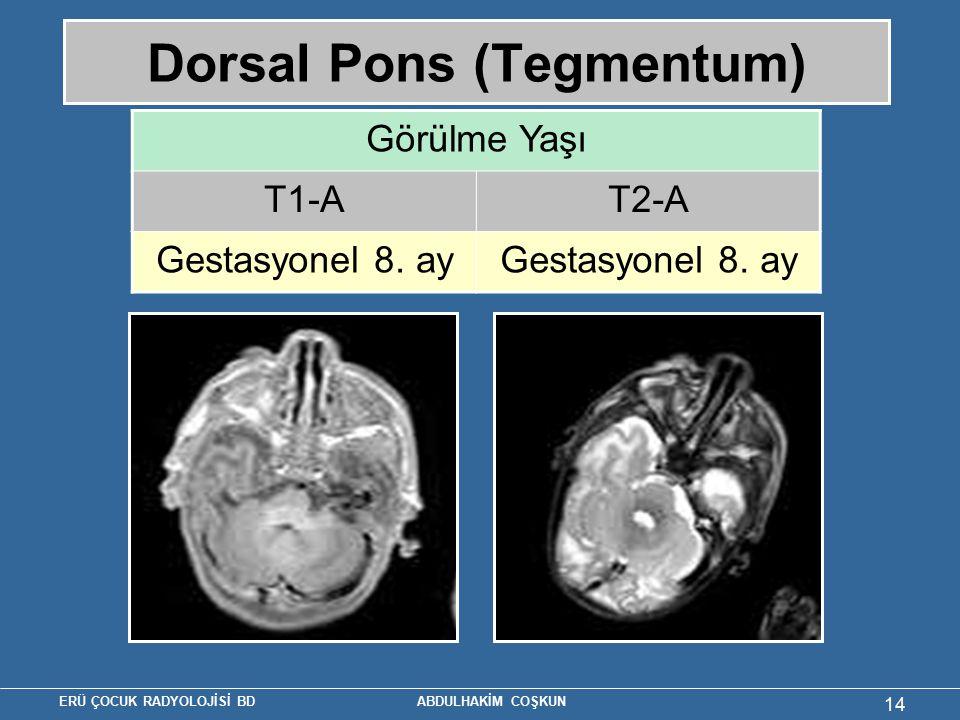 Dorsal Pons (Tegmentum)