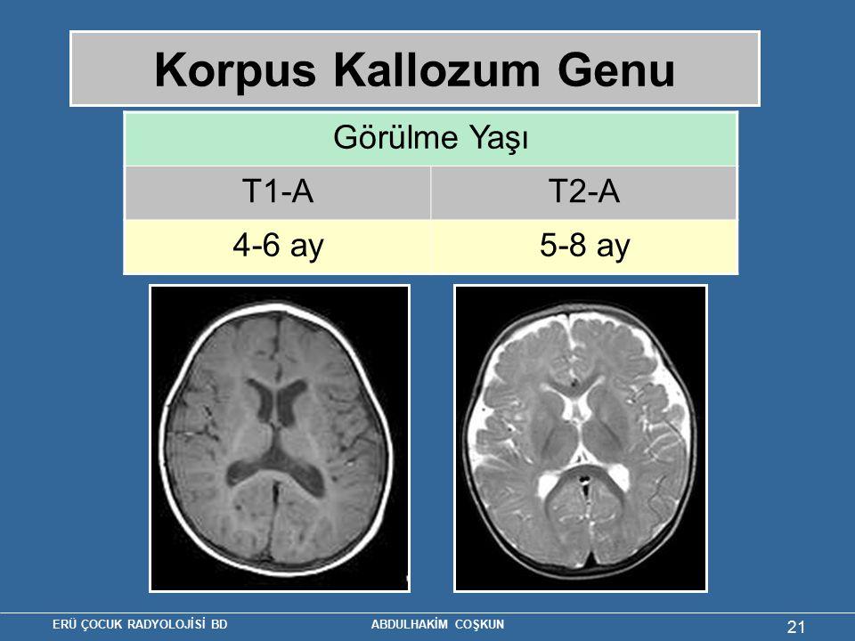 Korpus Kallozum Genu Görülme Yaşı T1-A T2-A 4-6 ay 5-8 ay