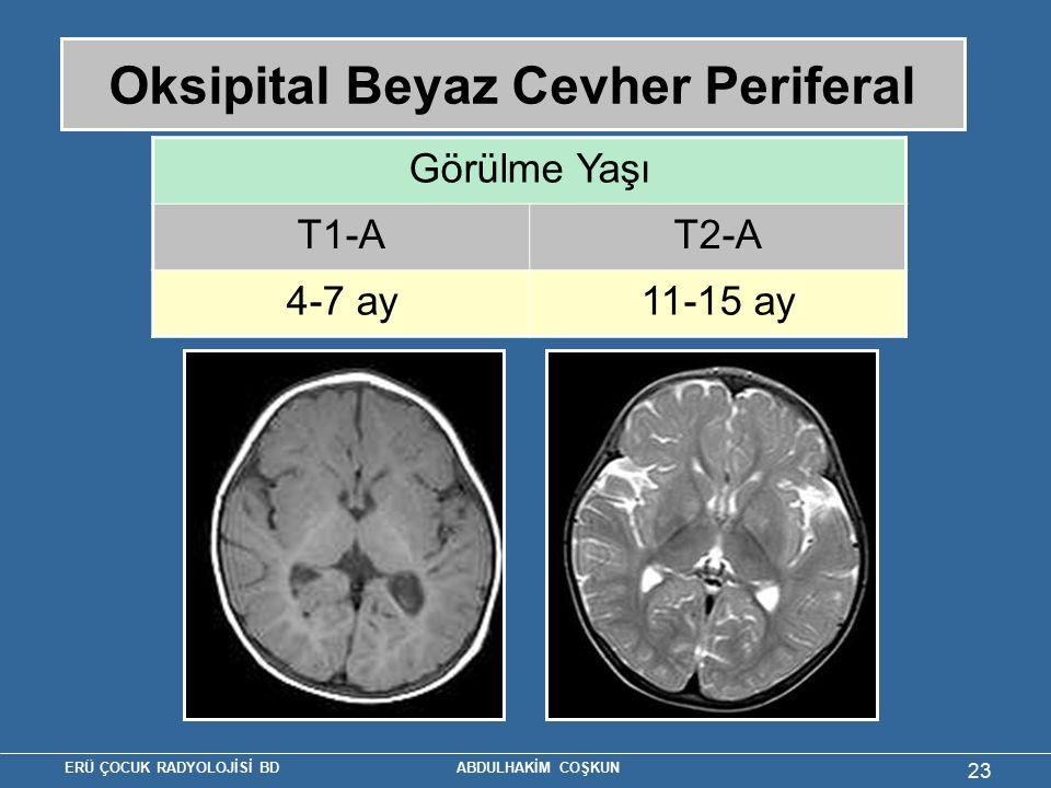 Oksipital Beyaz Cevher Periferal