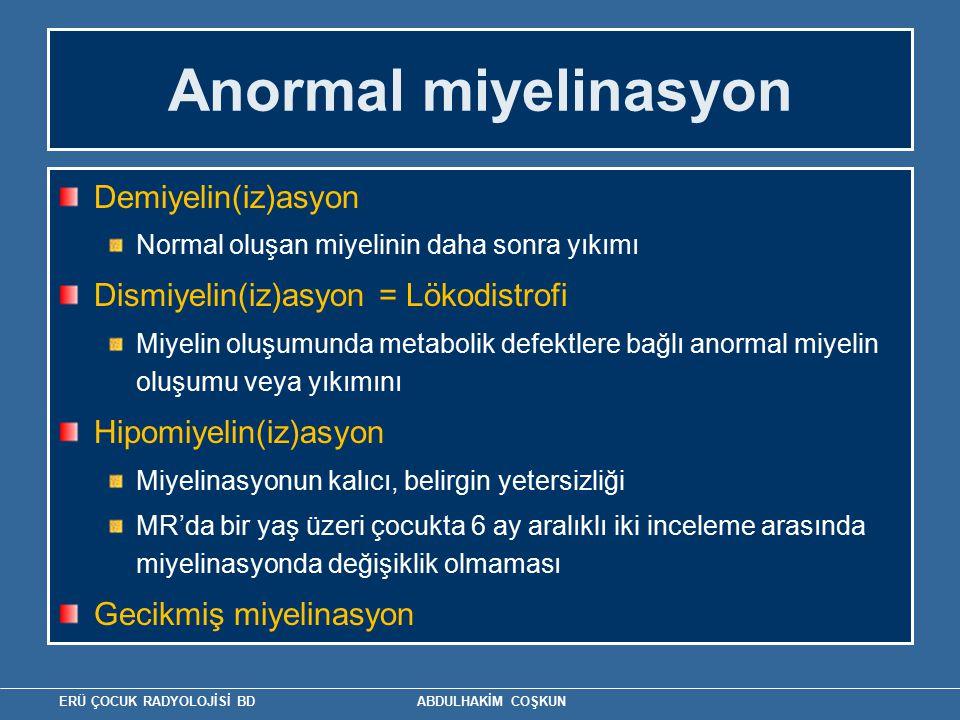 Anormal miyelinasyon Demiyelin(iz)asyon