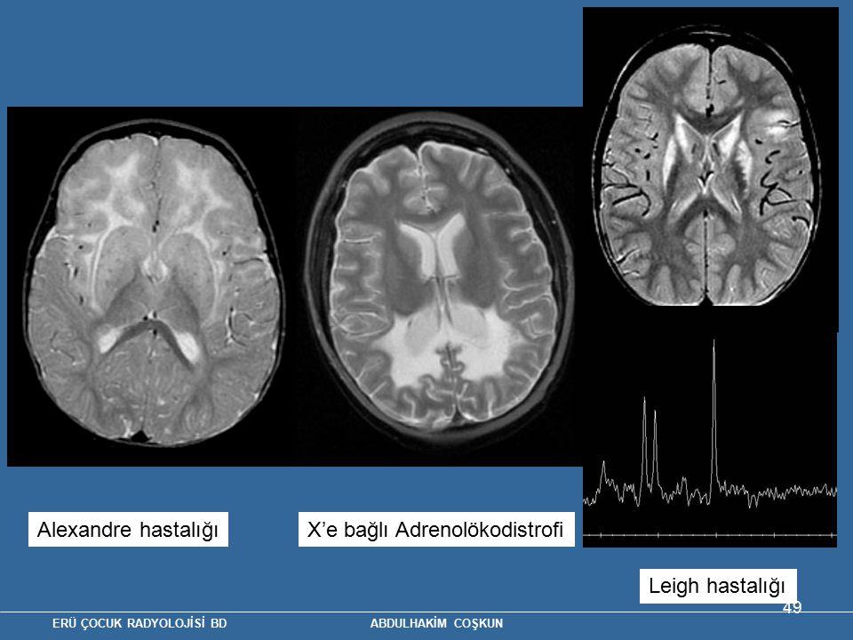 Alexandre hastalığı X'e bağlı Adrenolökodistrofi Leigh hastalığı