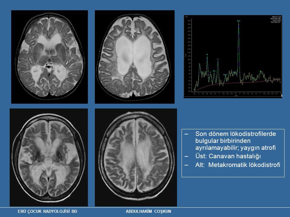 Üst: Canavan hastalığı Alt: Metakromatik lökodistrofi
