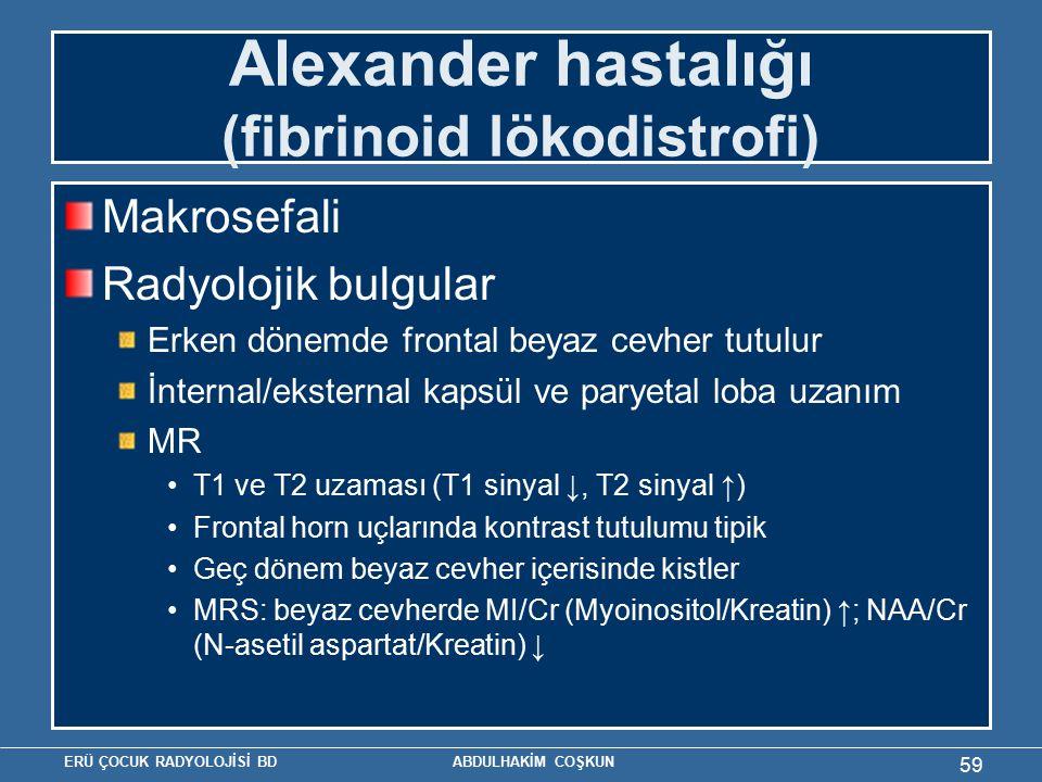 Alexander hastalığı (fibrinoid lökodistrofi)