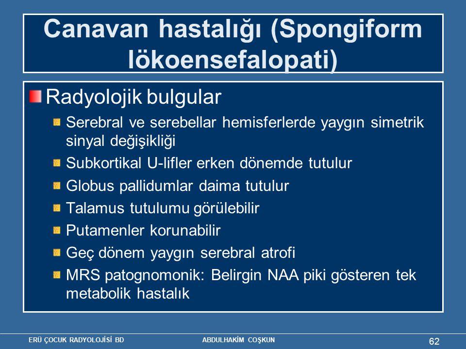 Canavan hastalığı (Spongiform lökoensefalopati)