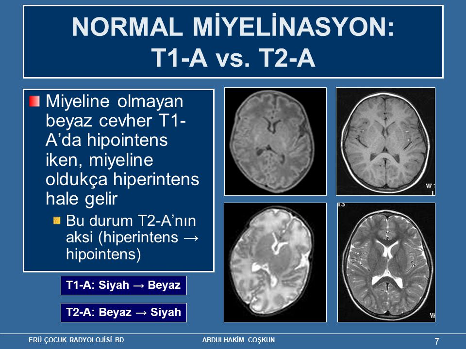 NORMAL MİYELİNASYON: T1-A vs. T2-A