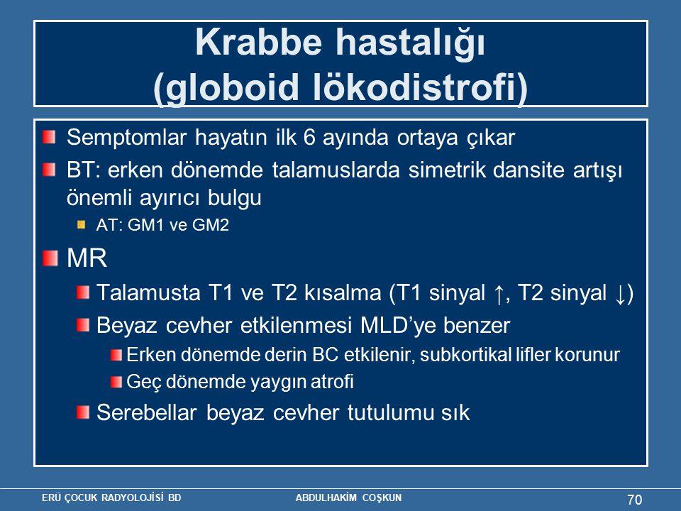 Krabbe hastalığı (globoid lökodistrofi)