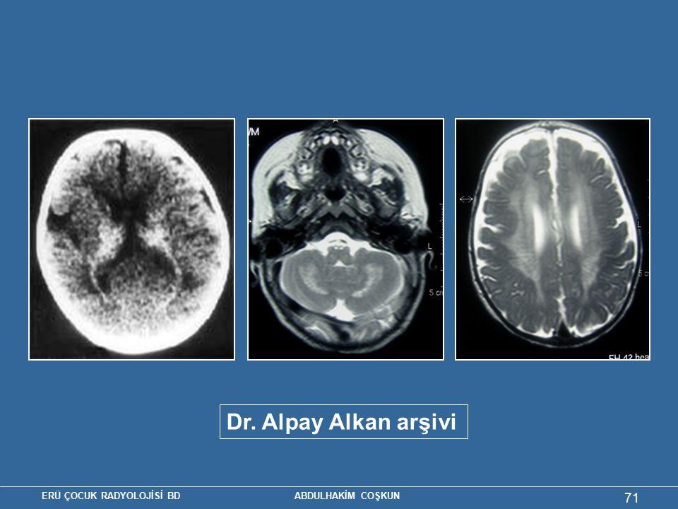 Krabbe hastalığı Dr. Alpay Alkan arşivi Dr. Alpay Alkan arşivi