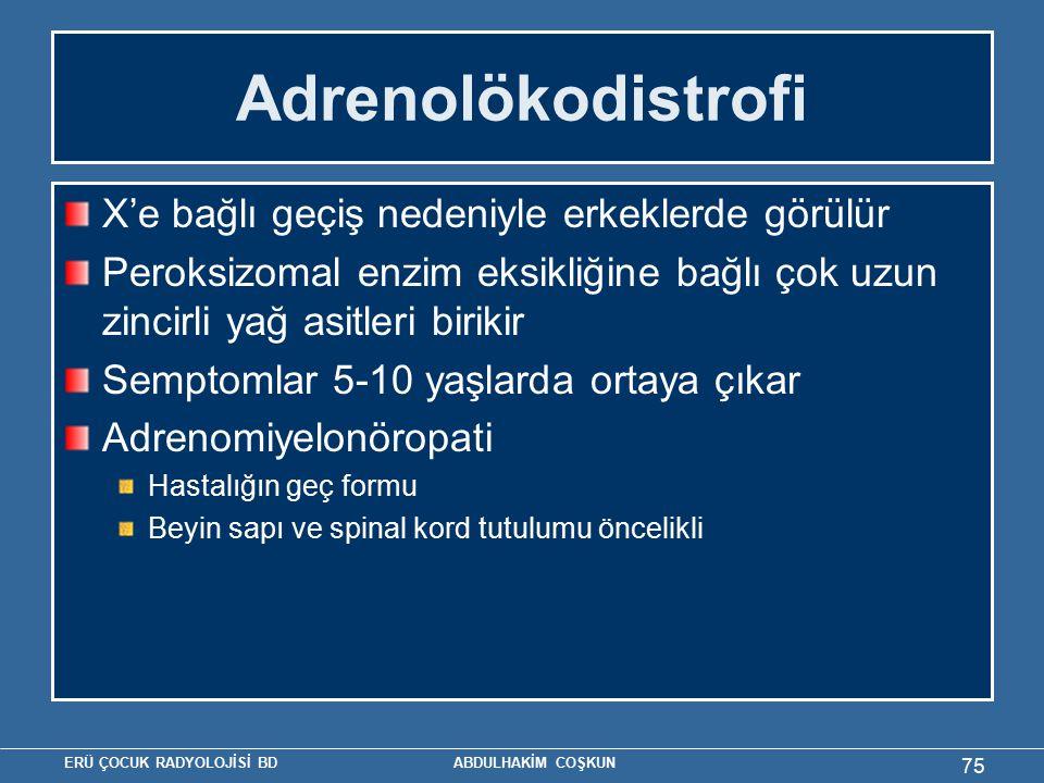 Adrenolökodistrofi X'e bağlı geçiş nedeniyle erkeklerde görülür