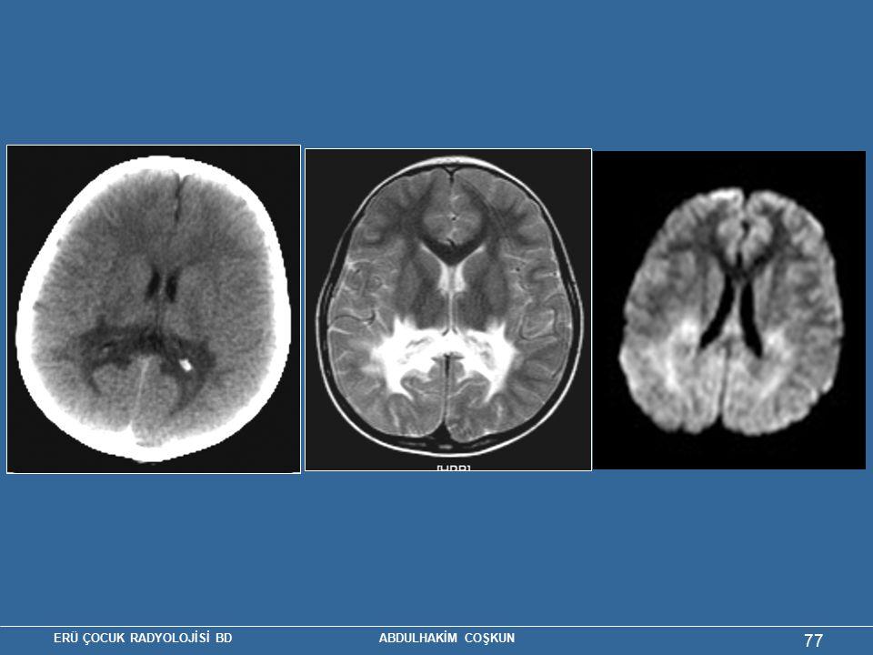 Resim 6. X – geçişli adrenolökodistrofi (11 yaş erkek)