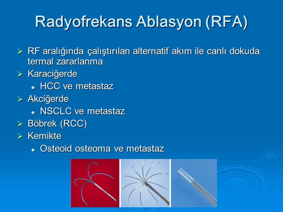 Radyofrekans Ablasyon (RFA)
