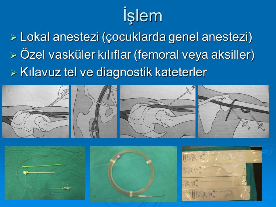 İşlem Lokal anestezi (çocuklarda genel anestezi)