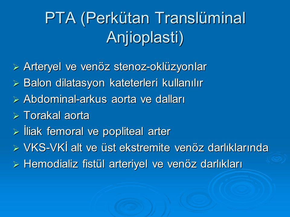 PTA (Perkütan Translüminal Anjioplasti)