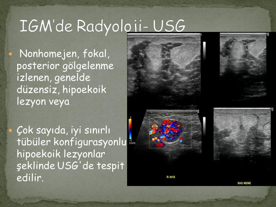 IGM'de Radyoloji- USG Nonhomejen, fokal, posterior gölgelenme izlenen, genelde düzensiz, hipoekoik lezyon veya.
