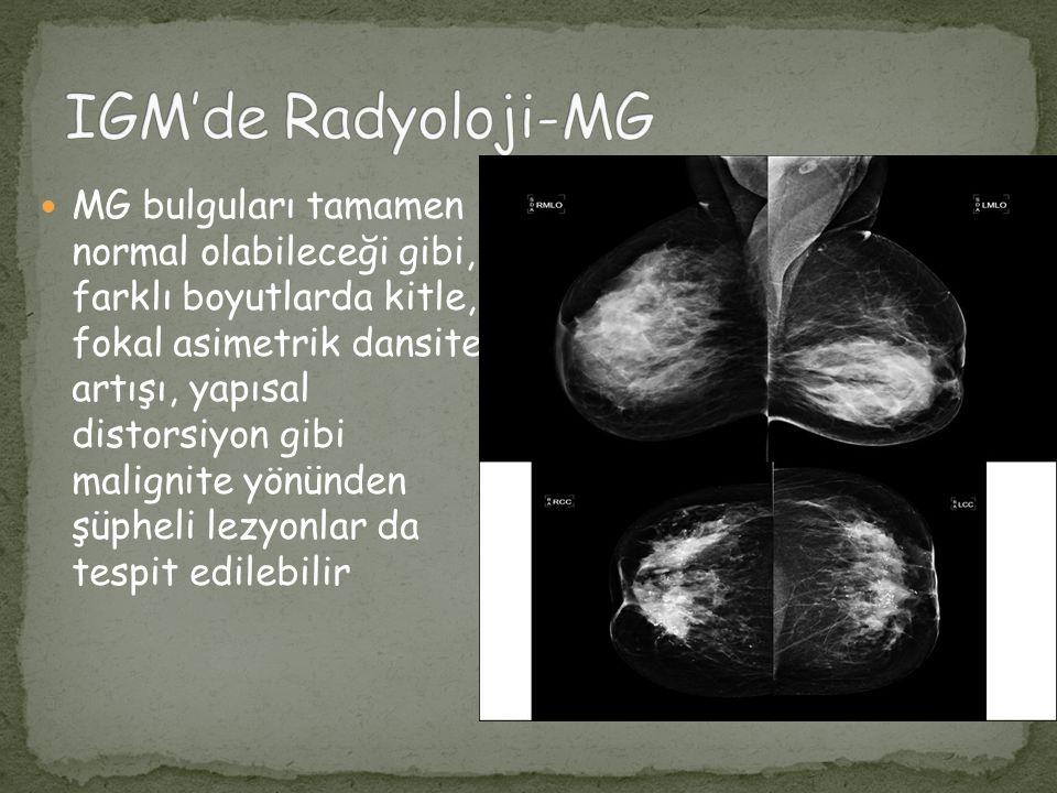 IGM'de Radyoloji-MG