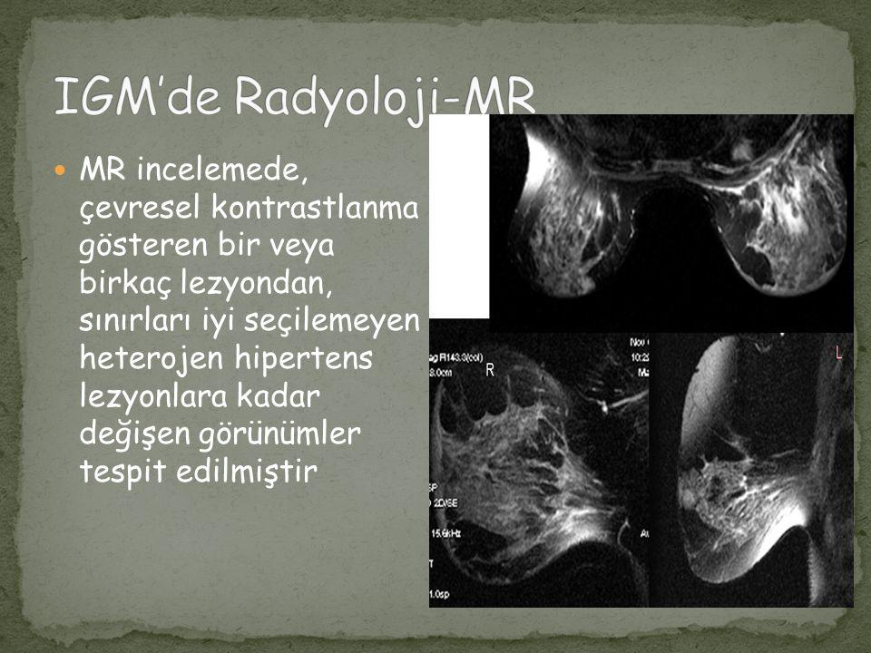 IGM'de Radyoloji-MR