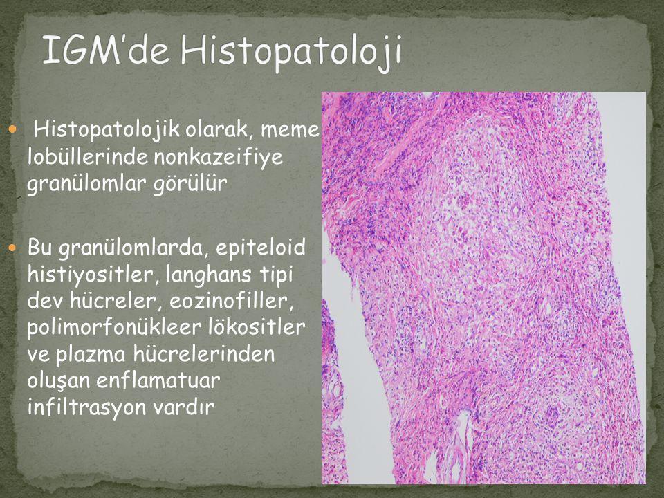 IGM'de Histopatoloji Histopatolojik olarak, meme lobüllerinde nonkazeifiye granülomlar görülür.