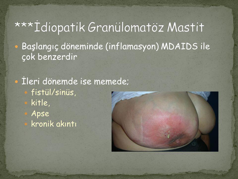 ***İdiopatik Granülomatöz Mastit