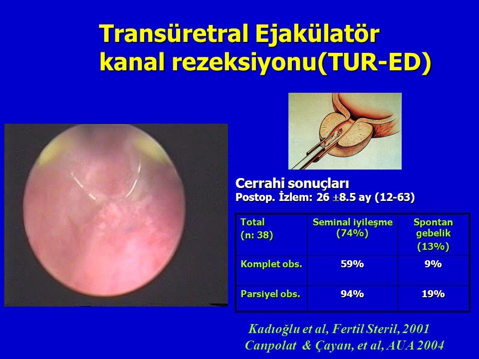 Transüretral Ejakülatör kanal rezeksiyonu(TUR-ED)