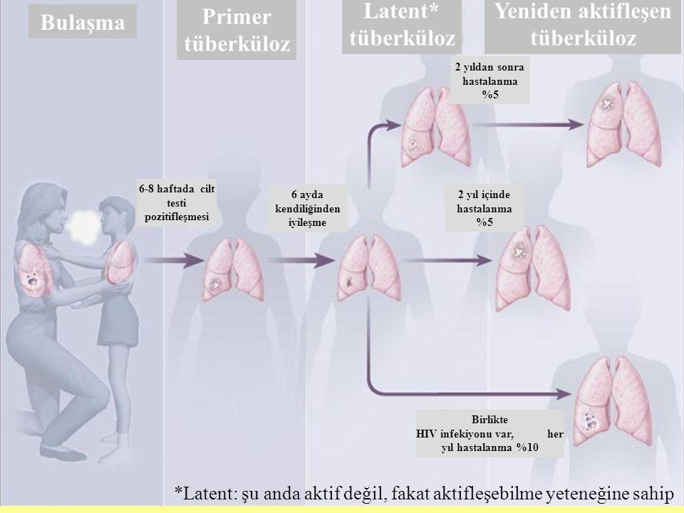 Yeniden aktifleşen tüberküloz