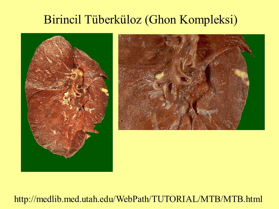 Birincil Tüberküloz (Ghon Kompleksi)