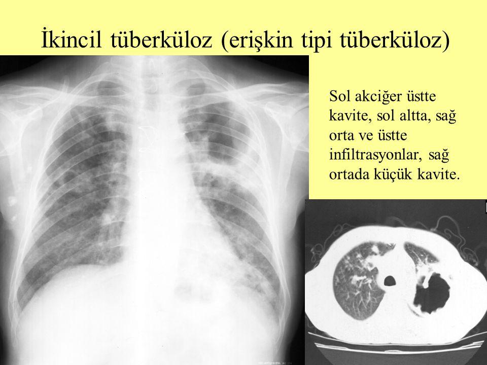 İkincil tüberküloz (erişkin tipi tüberküloz)
