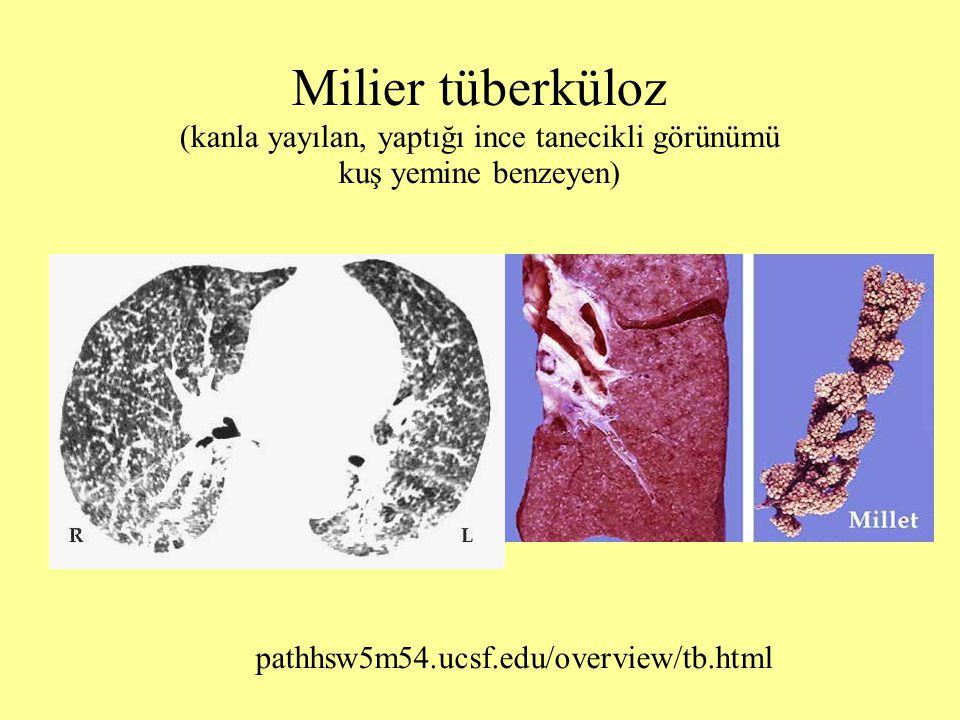 Milier tüberküloz (kanla yayılan, yaptığı ince tanecikli görünümü kuş yemine benzeyen)