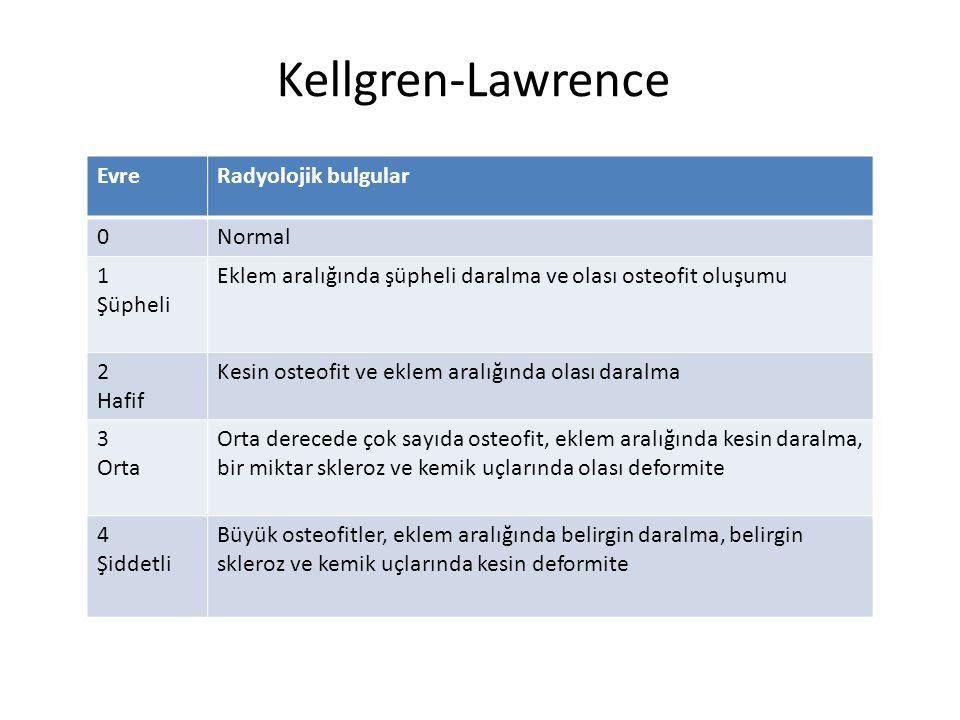 Kellgren-Lawrence Evre Radyolojik bulgular Normal 1 Şüpheli
