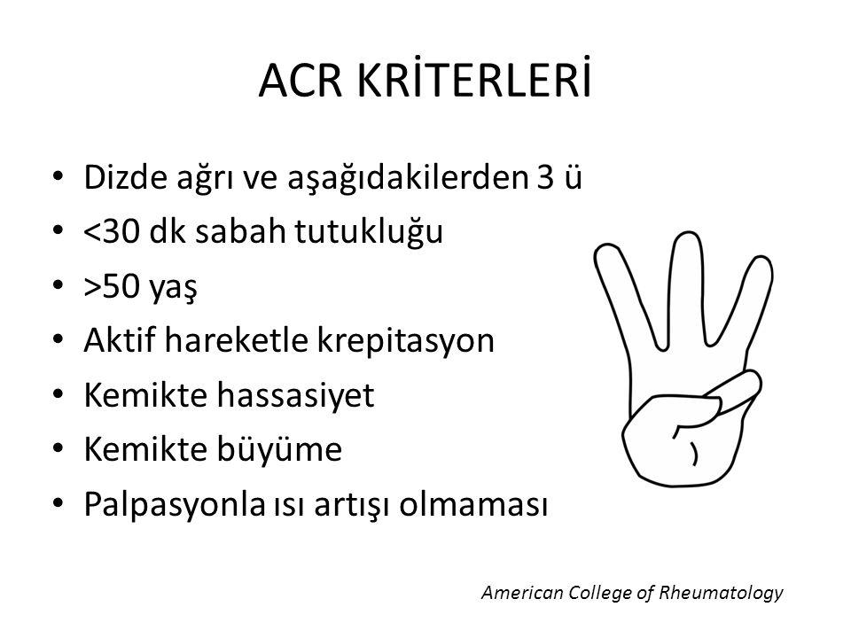 ACR KRİTERLERİ Dizde ağrı ve aşağıdakilerden 3 ü