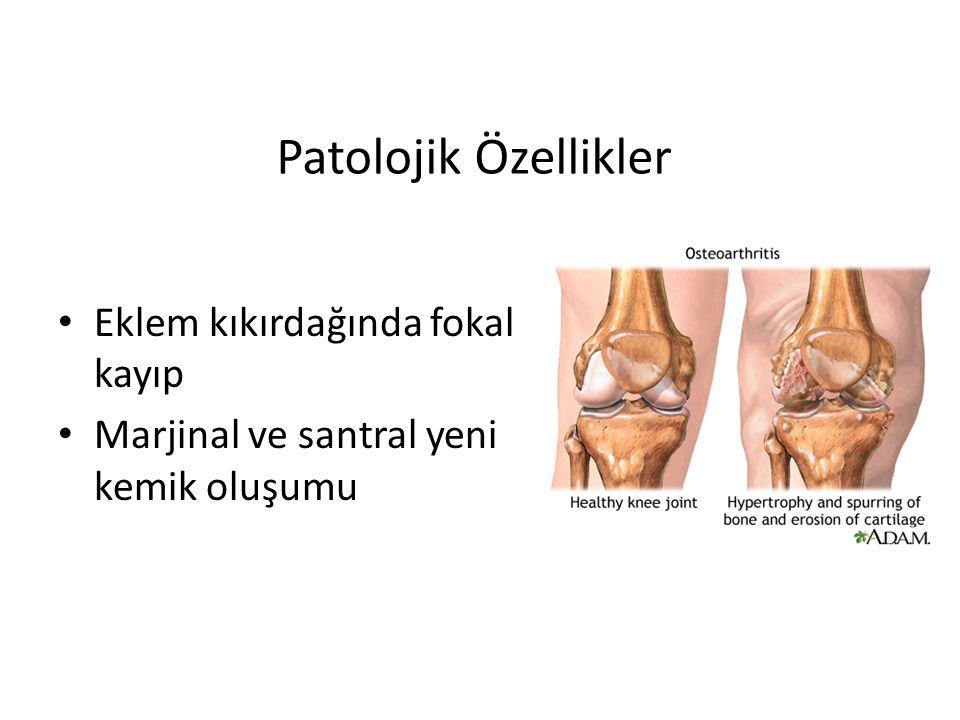 Patolojik Özellikler Eklem kıkırdağında fokal kayıp