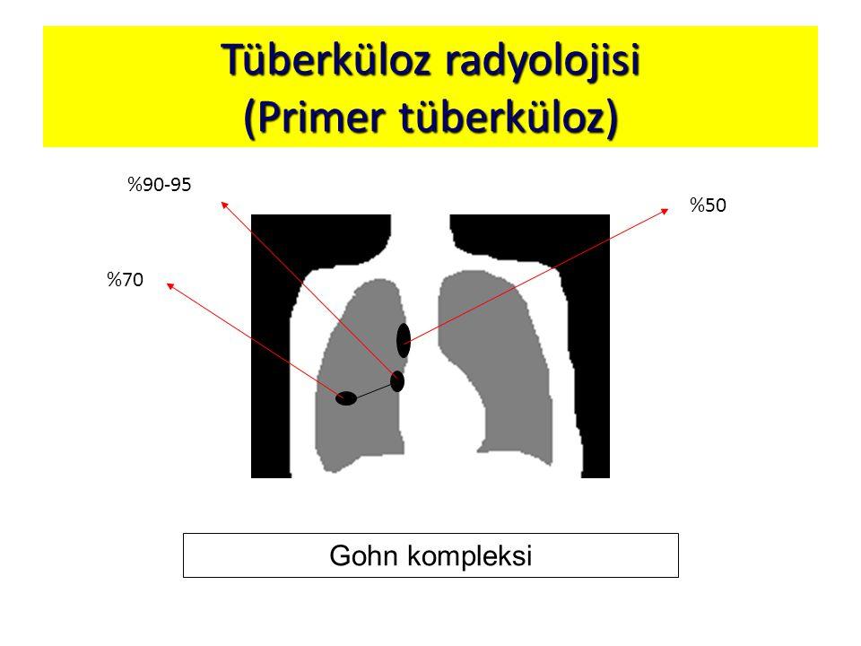 Tüberküloz radyolojisi (Primer tüberküloz)