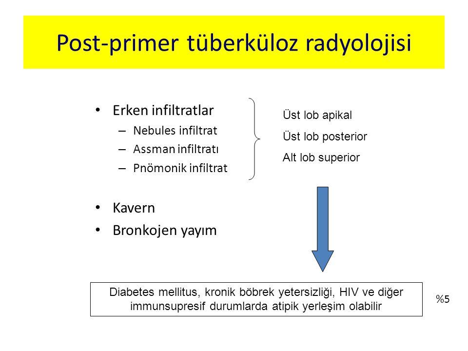 Post-primer tüberküloz radyolojisi