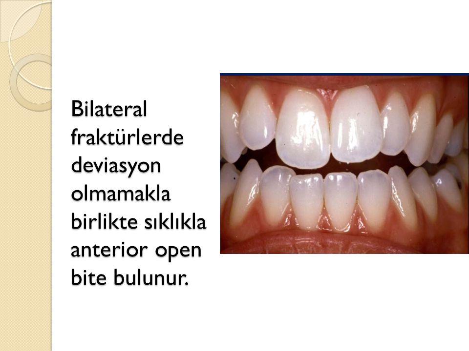 Bilateral fraktürlerde deviasyon olmamakla birlikte sıklıkla anterior open bite bulunur.