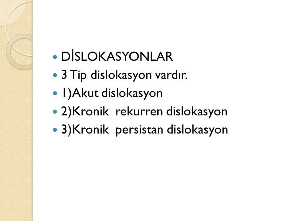 DİSLOKASYONLAR 3 Tip dislokasyon vardır. 1)Akut dislokasyon.