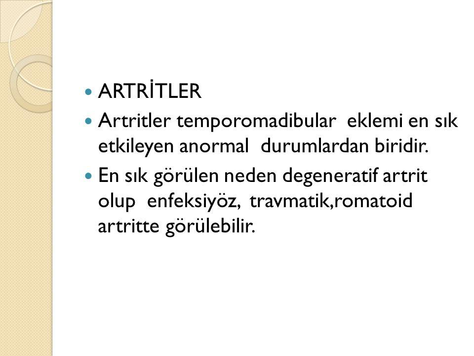 ARTRİTLER Artritler temporomadibular eklemi en sık etkileyen anormal durumlardan biridir.