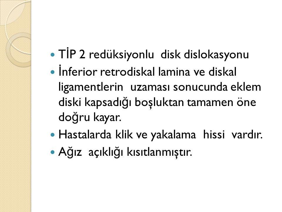 TİP 2 redüksiyonlu disk dislokasyonu