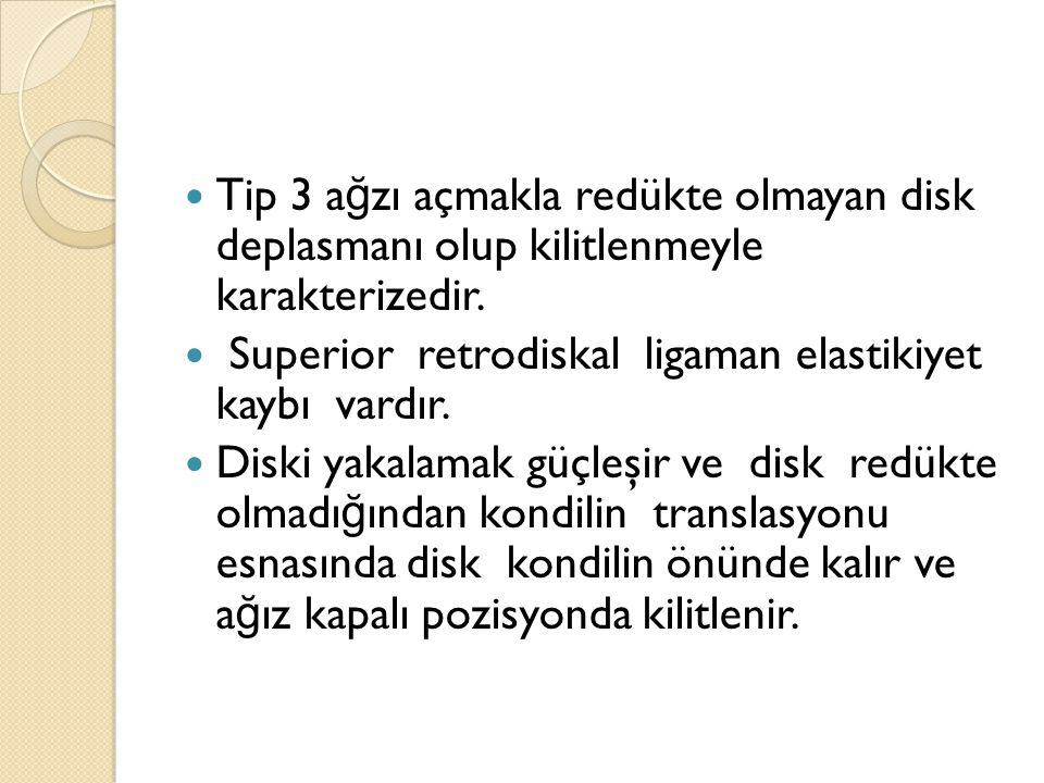 Tip 3 ağzı açmakla redükte olmayan disk deplasmanı olup kilitlenmeyle karakterizedir.