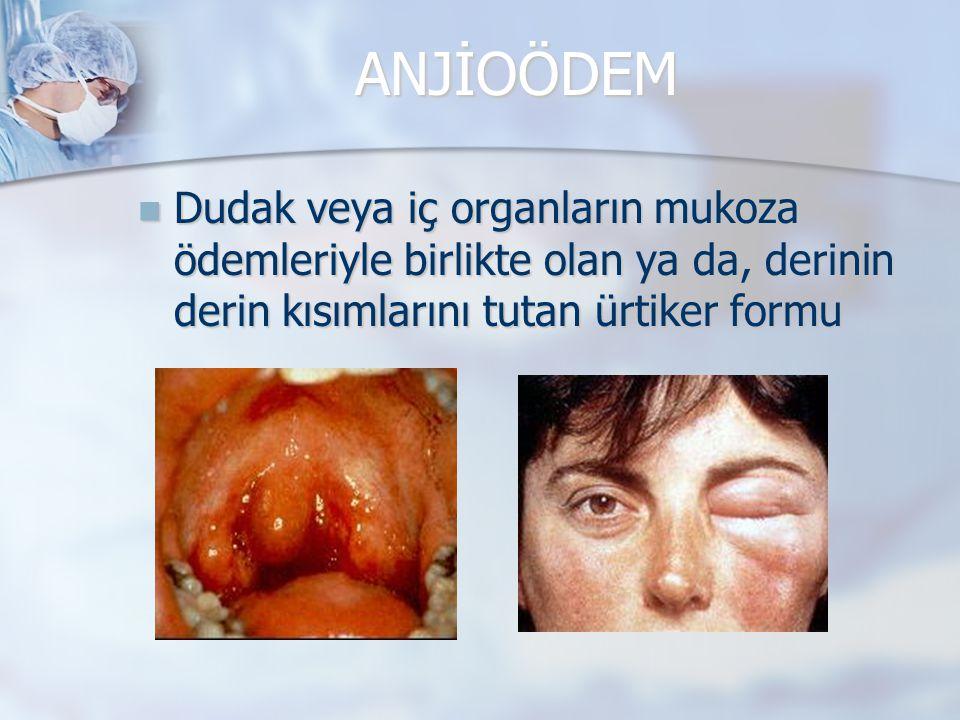 ANJİOÖDEM Dudak veya iç organların mukoza ödemleriyle birlikte olan ya da, derinin derin kısımlarını tutan ürtiker formu.