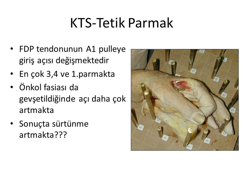 KTS-Tetik Parmak FDP tendonunun A1 pulleye giriş açısı değişmektedir