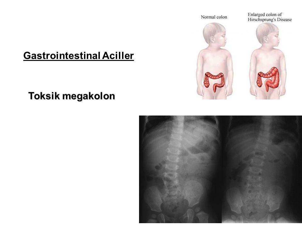 Gastrointestinal Aciller