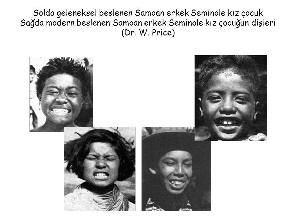 Solda geleneksel beslenen Samoan erkek Seminole kız çocuk Sağda modern beslenen Samoan erkek Seminole kız çocuğun dişleri (Dr.