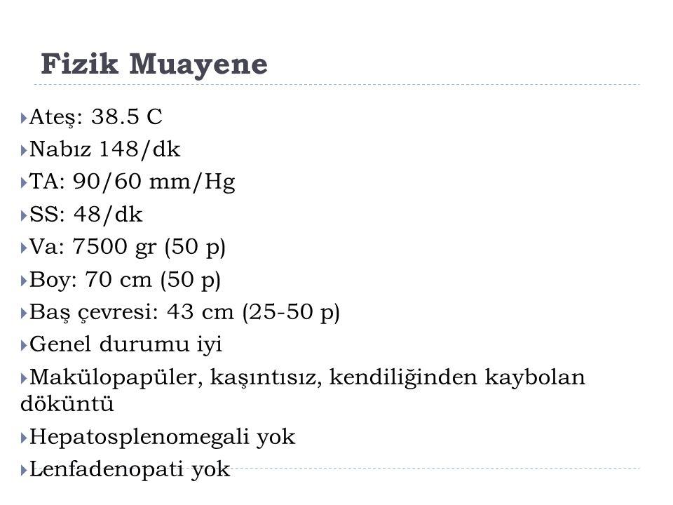 Fizik Muayene Ateş: 38.5 C Nabız 148/dk TA: 90/60 mm/Hg SS: 48/dk